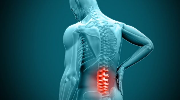 Best Back Braces For Herniated Disc – Reviews, Specs & Buyers's Guide